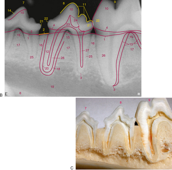 molar tooth structure - 650×646