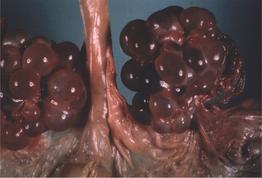 agenesia sacro coccinea sintomi