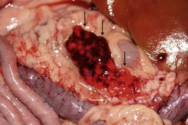 Fat necrosis pancreas