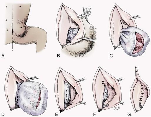 Abdominal Wall Reconstruction And Hernias Veterian Key