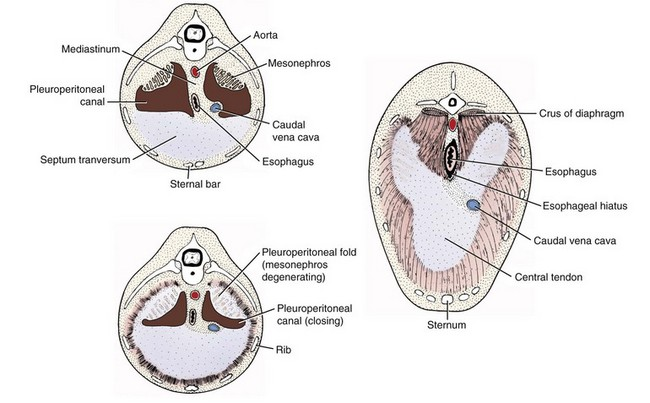 What Is The Cranium moreover Medical Body Images besides Are The Approximal Caries Lesions In Primary Teeth A Challenge To Deal With A Critical Appraisal Of further Diaphragm moreover Diaphragmatic Hernias. on body cavities diagram