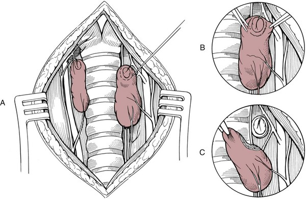 Thyroid And Parathyroid Glands Veterian Key