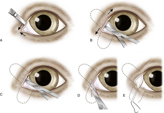 basic ophthalmic surgical procedures veterian key