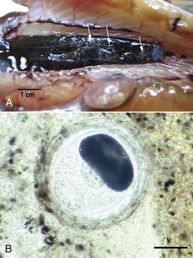 helminthoeca neorickettsia nemi szemölcsök kezelésére