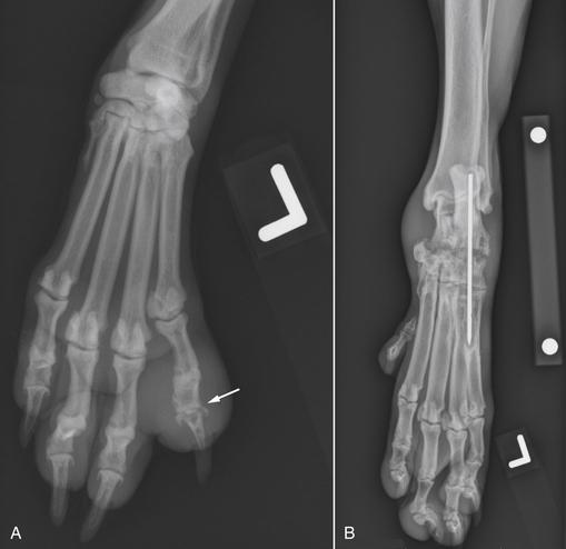Osteomyelitis Discospondylitis And Infectious Arthritis