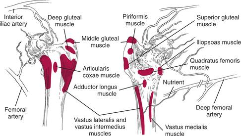 Fractures of the Femur | Veterian Key