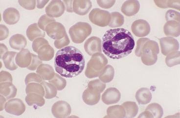 Peripheral Blood Smears   Veterian Key Vacuolization Of Neutrophils