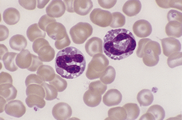 Peripheral Blood Smears | Veterian Key Vacuolization Of Neutrophils