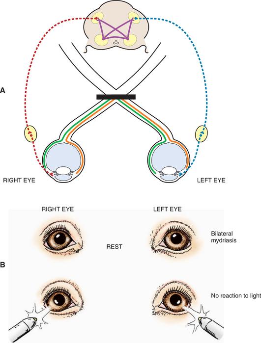 Neuroophthalmology Veterian Key
