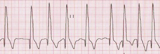 Canine Cardiomyopathy Veterian Key