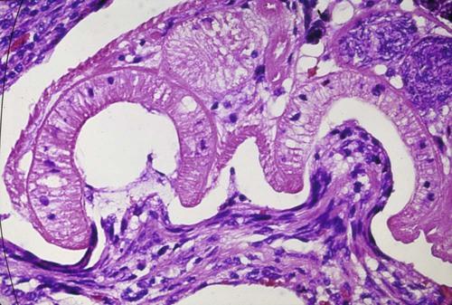 neorickettsia helminthoeca tratament)