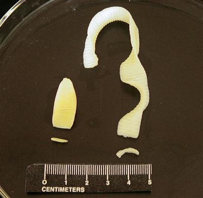 Common Laboratory Procedures For Diagnosing Parasitism