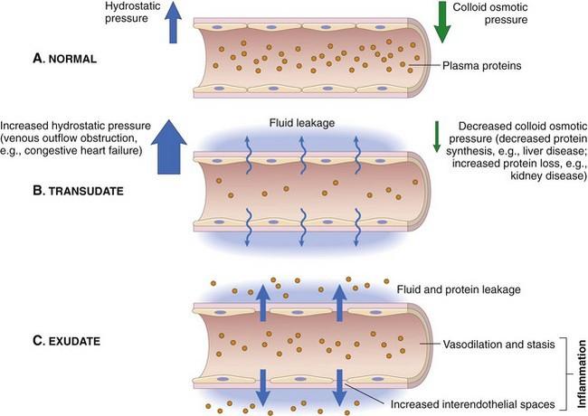 Inflammation and Healing   Veterian Key