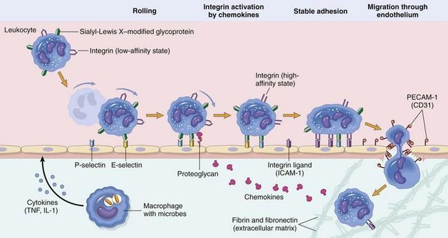 acute interstitial pneumonitis steroids