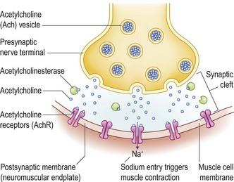 LMN paresis and paralysis: Acquired myasthenia gravis ...