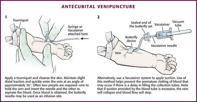 Pediatric Vascular Access And Blood Sampling Techniques
