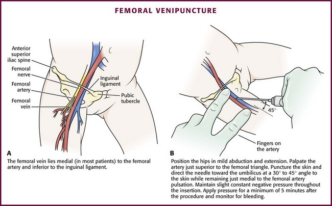 outcome of vascular complications after arterial punctures The risk of inadvertent arterial cannulation during central catheter placement 2013-2347 below is a partial list of inadvertent arterial cannulation-related complications reported in the literature.