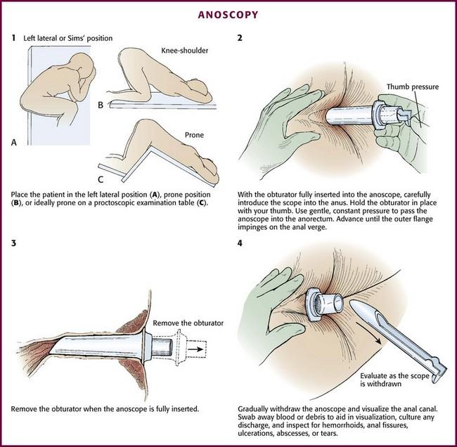 Chiave veterinaria procedure anorettali-8871