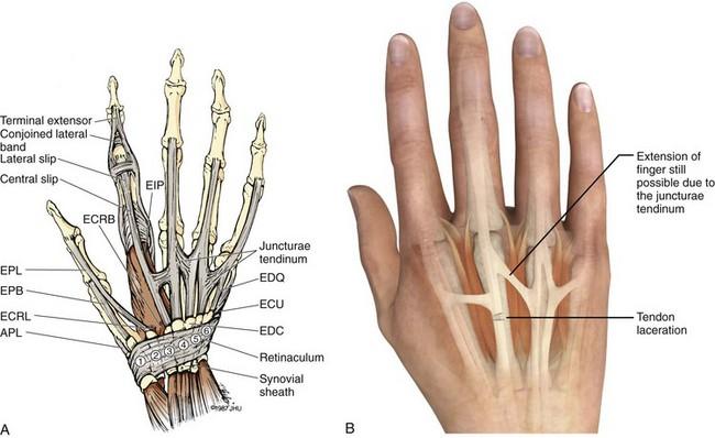 Flexor Tendon Ring Finger