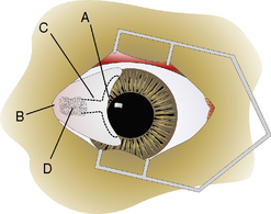 Surgical procedures for the conjunctiva and the ...