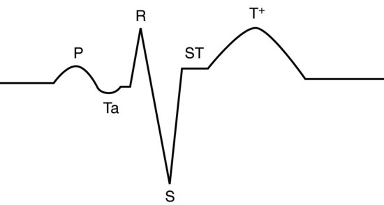 Avian emergency and critical care medicine veterian key figure 164 normal lead ii annotated trace for pigeons and some psittacine birds showing the ta wave associated with atrial repolarisation ccuart Images